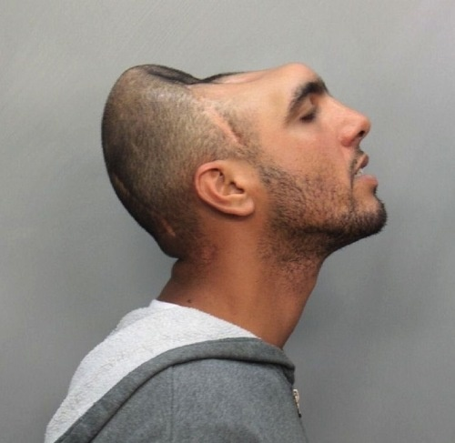 carlos rodriguez Carlos Rodriguez Is Our Half A Head Mug Shot Of The Day