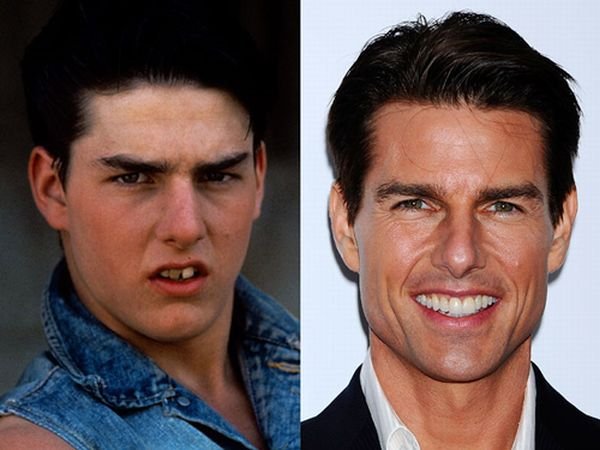 famous smiles 09 Celebrity Teeth: Before And After