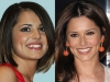 thumbs cheryl cole Celebrity Teeth: Before And After