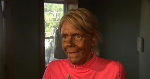 patricia krentcil If tan mum wants a burnt to the crisp complexion, thats her choice