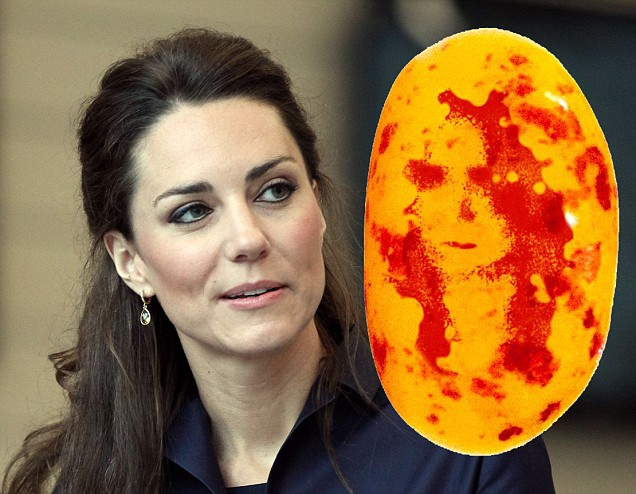 kate middleton nose job. kate middleton prince williams
