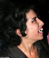 amy-winehouse-teeth.jpg