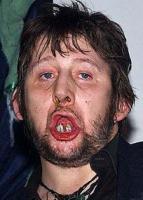 bad-teeth-shane_macgowan.jpg