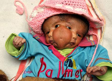 baby faces Child Born With Two Faces In Pakistan: Photos