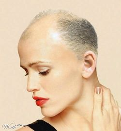 bald-woman.jpg