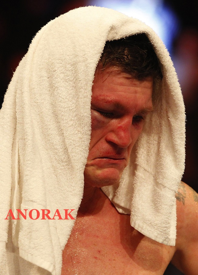 PA 15208675 Face Of the day: Ricky Hatton is defeated by Vyacheslav Senchenko