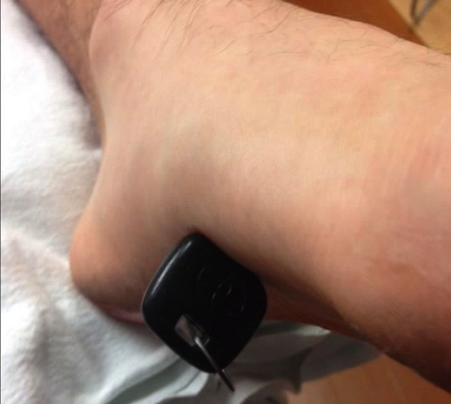 key foot 3 So. You got a car key stuck in your foot (photos)