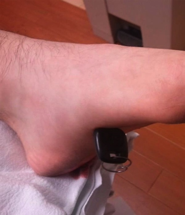 key foot 4 So. You got a car key stuck in your foot (photos)