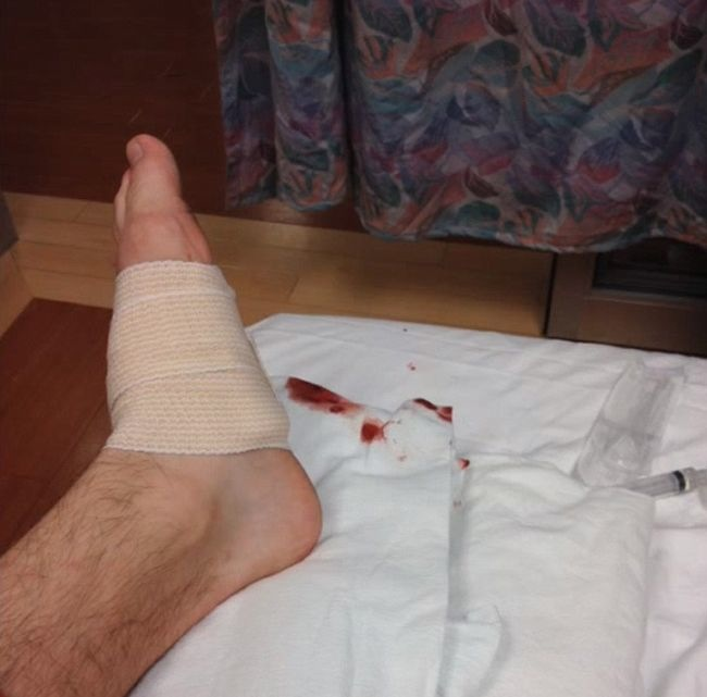 key foot 6 So. You got a car key stuck in your foot (photos)