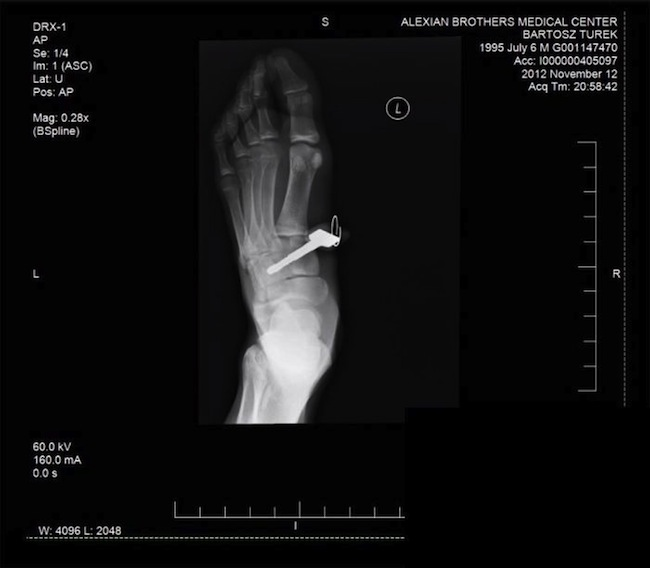 key foot 71 So. You got a car key stuck in your foot (photos)