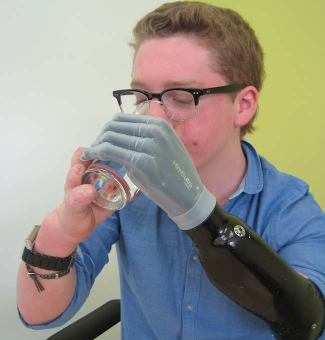 Boy fitted with bionic hand