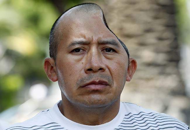 Antonio Lopez Chaj, a 43-year-old house painter, appears with his attorneys at a news conference in Los Angeles Monday, July 1, 2013. Lopez Chaj is so badly brain damaged for a beating in a bar that left him with half his skull permanently bashed in that he cannot speak. His lawyers announced he has been awarded a $58 million by a jury in Torrance Superior Court. (AP Photo/Nick Ut)