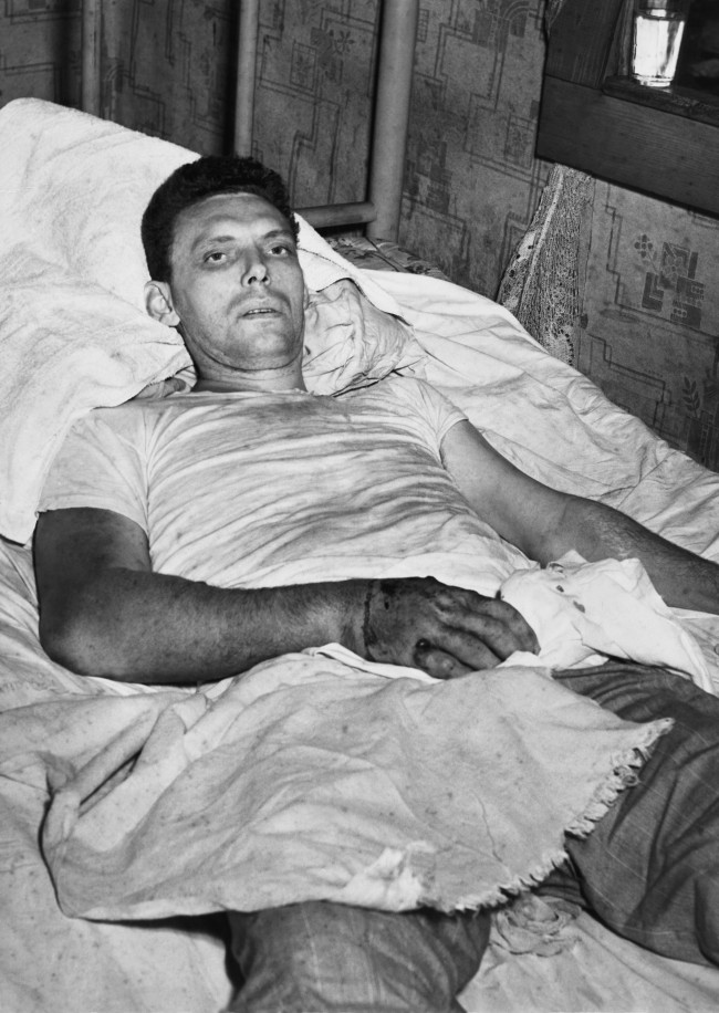 The Rev. Atlas Johnson, 25, Holiness Church preacher, in his mountain cabin, seriously ill from a snakebite in Norton, Virginia, July 25, 1952. Johnson clung to life, still without medical attention which he has steadfastly refused. He was bitten four times by a diamond-back rattlesnake during a snake-handling religious service on Sunday.