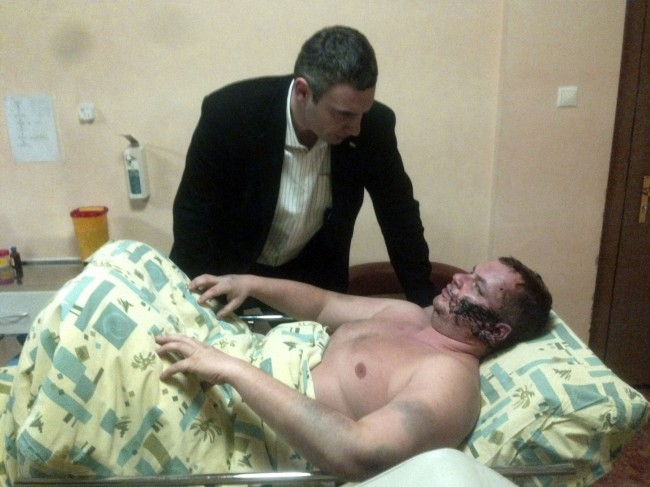 Ukrainian opposition leader Vitali Klitschko, top, speaks to Dmytro Bulatov in hospital, in Kiev, Ukraine, Friday, Jan. 31, 2014. Bulatov a Ukrainian opposition activist who went missing last week says he was kidnapped and tortured, the latest in a string of mysterious attacks on anti-government protesters in the two-month-long political crisis. Dmytro Bulatov, 35, a member of Automaidan, a group of car owners that has taken part in the protests against President Viktor Yanukovych, went missing Jan. 22. He was discovered outside Kiev on Thursday, Jan. 30, 2014. He said his kidnappers beat him severely, nailed him to a cross, sliced off a piece of ear and cut his face.