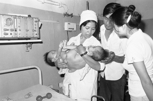 Year-old conjoined twins being cared for at Hanoi's Viet-Duc hospital, a center for treating deformed children and others who may have been affected by exposure to the defoliant Agent Orange, employed by U.S. forces during the war, are shown May 30, 1982. The Vietnamese admit they have no firm proof yet of the relationship between the chemical and adverse health. The conjoined twins were not cited as examples of the agent's possible damage to humans.