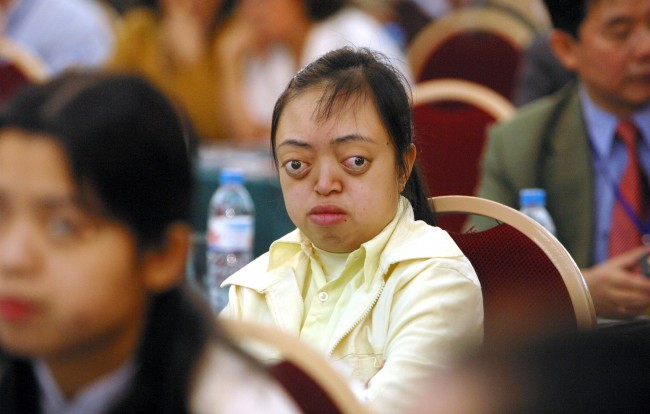 Nguyen Van Long, 20, believed to be a victim of Agent Orange, listens to speeches at an international conference of Agent Orange Victims in Hanoi, Vietnam, Tuesday, March 28, 2006. Participants hope to raise more awareness of the issue and demand U.S. government and toxic chemical companies to compensate for the victims.