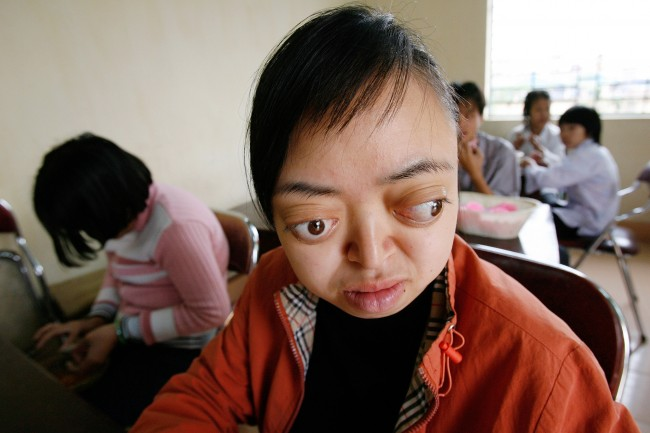 Nguyen Thi Van Long, 20, with birth defects believed to be caused by Agent Orange, works in her classroom at the Friendship Village on the outskirts of Hanoi, Vietnam on Wednesday, March 29, 2006. Civilians and Vietnam war veterans from several countries held a two-day conference to plead for recognition of health problems they say are associated with Agent Orange, the chemical defoliant U.S. forces sprayed during the war.