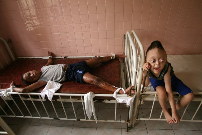 "Thirteen-year-old Tran Minh Anh, left, who was born in Long An Province and suffers from a disease called X-linked ichthyosis, is tied down to a bed to protect from hurting himself at the ""Peace Village"" of Tu Du hospital in Ho Chi Minh City, May 25, 2007. On the right is Nguyen Xuan Minh, age 6. Accoding to hospital staff, both boys are suffering from conditions suspected to have been caused by exposure by their parents to dioxin in the chemical defoliant Agent Orange."