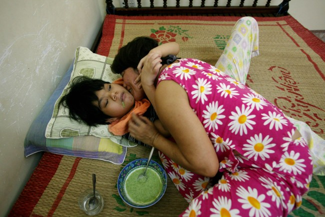 Ngyuyen Thi Thuy Lieu kisses and hugs her daughter Ngyuyen Thi Trang Ngan as she feeds her lunch on their family bed at their home in Danang, Vietnam on Monday, May 21, 2007. Ngyuyen Thi Thuy Lieu, who grew up next to the U.S. military base inside Denang airbase, has given birth to two children with physical and mental disabilities. More than 30 years after the Vietnam War ended, the poisonous legacy of Agent Orange has emerged anew with a scientific study that has found extraordinarily high levels of health-threatening contamination at the former U.S. air base at Danang.