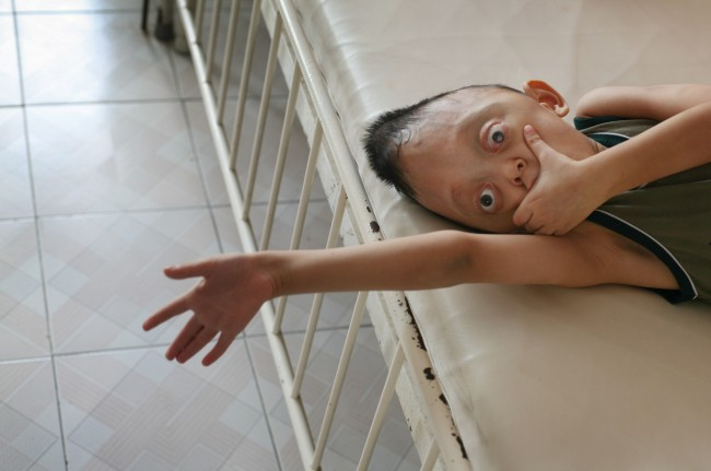 "Nguyen Xuan Minh, age 6, rests in his bed at the ""Peace Village"" of Tu Du hospital in Ho Chi Minh City Friday, May 25, 2007. According to hospital staff, the boy is suffering from physical deformities suspected to have been caused by his parents' exposure to dioxin in the chemical defoliant Agent Orange."