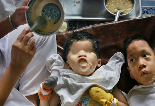 "*Five-year-old girl Tran Huynh Thuong Sinh, who was born without eyes in the Binh Dinh province of Vietnam, is fed breakfast by a nurse at the ""Peace Village"" center at Tu Du hospital in Ho Chi Minh City, Vietnam, in this May 25, 2007, file photo. Officials at the hospital suspect that the dioxin in Agent Orange blocks the receptors in a developing fetus, preventing the hormones that would normally instruct the cells to form eyes from doing so."