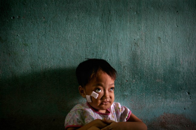 *Nguyen Thi Kieu Nhung sits inside her family home next to the Danang airbase in Danang, Vietnam, in this May 21, 2007, file photo. The girl was born with physical deformities, including twisted limbs, a misshapen head, and protruding eyes suspected by local health officials to have been caused by dioxin in the chemical defoliant Agent Orange. More than 30 years after the Vietnam War ended, the poisonous legacy of Agent Orange has emerged anew with a scientific study that has found extraordinarily high levels of health-threatening contamination at the former U.S. air base at Danang.