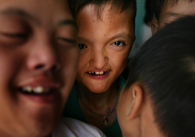 *A group of boys play together at a center for Agent Orange victims in Danang, Vietnam, in this May 21, 2007, file photo. More than 30 years after the Vietnam War ended, the poisonous legacy of Agent Orange has emerged anew with a scientific study that has found extraordinarily high levels of health-threatening contamination at the former U.S. air base at Danang.