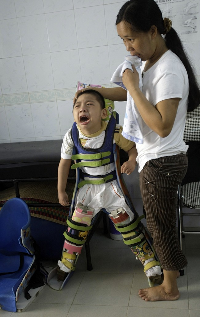Tran Tien Dat, 4, is seen during a rehabilitation session with his aunt Doan Thi Quyen at Thanh Xuan Peace Village in Hanoi, Vietnam