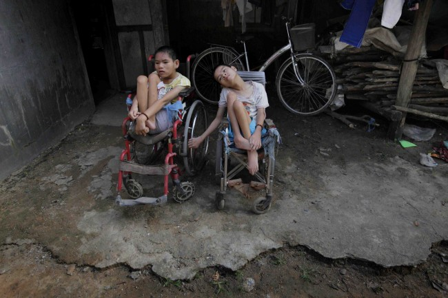 In this photo taken on Oct. 5, 2009, Nguyen Thi Tai, left, and Nguyen Thi Thuyet sit together in their wheelchairs outside their family home in the village of Cam Tuyen, Vietnam. The two young women were born with profound physical and mental disabilities that the family, and local officials say, were caused by their parents' exposure to the chemical dioxin in the defoliant Agent Orange.