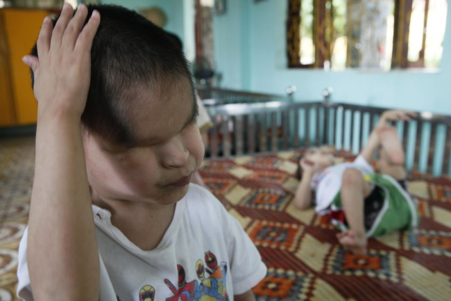 Nguyen Tuan Tu, a second generation Agent Orange victim who was born without eyes