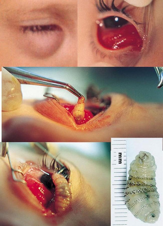 botfly eye 1