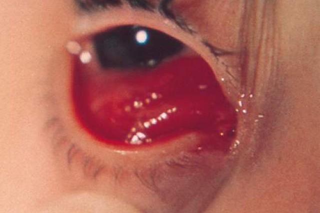 botfly eye