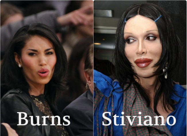 stiviano burns