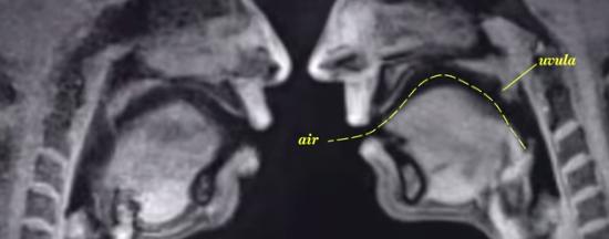 MRI scan sex