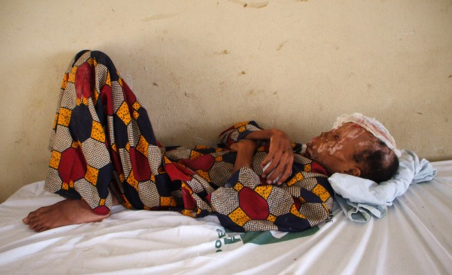 "This Aug. 18, 2009 photo shows Nwanaokwo Edet, 9, whose father forced him to drink acid days after the family's pastor denounced the child as a witch, lying in a hospital bed in Akwa Ibom, Nigeria. He died from his injuries one month later. Edet was one of an increasing number of children in Africa accused of witchcraft by pastors and then tortured or killed, often by family members. Pastors were involved in half of 200 cases of ""witch children"" reviewed by the Associated Press, and 13 churches were named in the case files. (AP Photo/Sunday Alamba)"