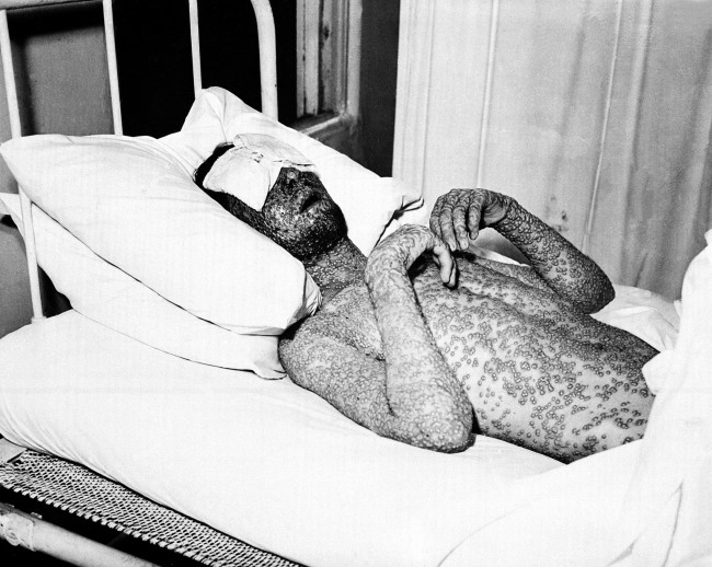 "A man who has contracted small pox is shown with a formation of scar-producing pustules on his body on Nov. 1, 1941. To encourage the public to vaccinate against the highly contagious viral disease caused by a poxvirus, the New York State Board of Health anti-disease campaign is using this image in New York and other states with the caption, ""This man was never vaccinated against smallpox."""
