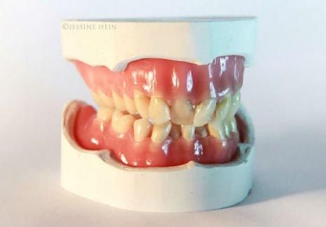 bowie teeth 1
