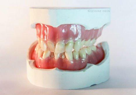 bowie teeth 2