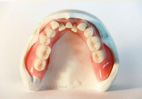 bowie teeth 3