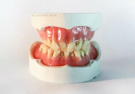 bowie teeth 4
