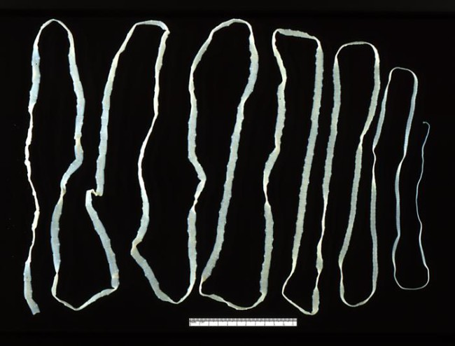 This is an adult Taenia saginata tapeworm.