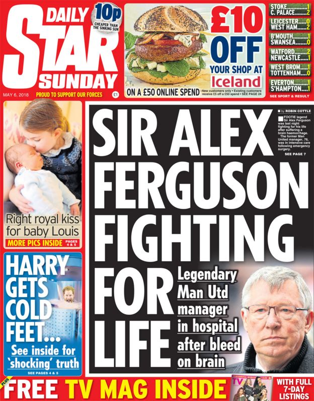 alex ferguson brain surgery