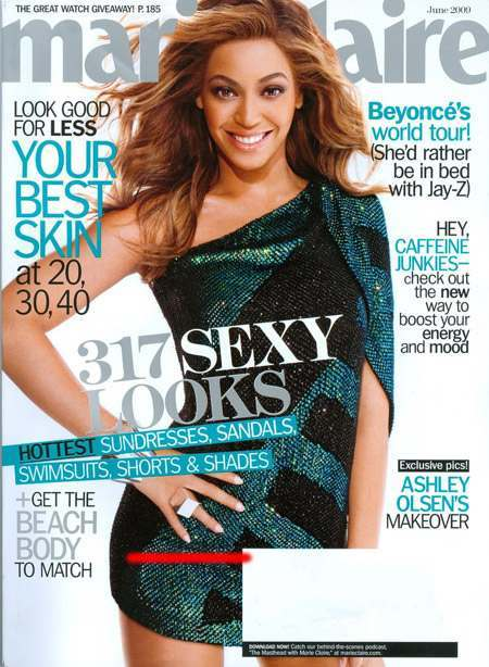 beyonce-loses-a-finger