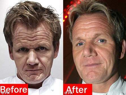 anorak news gordon ramsay s face is filled with a form of botulism