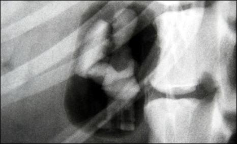 homer-simpson-x-ray