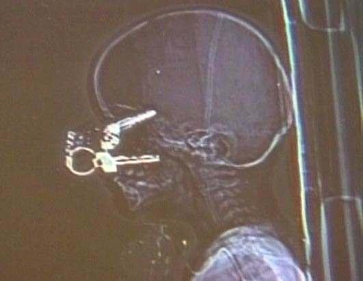 key-head