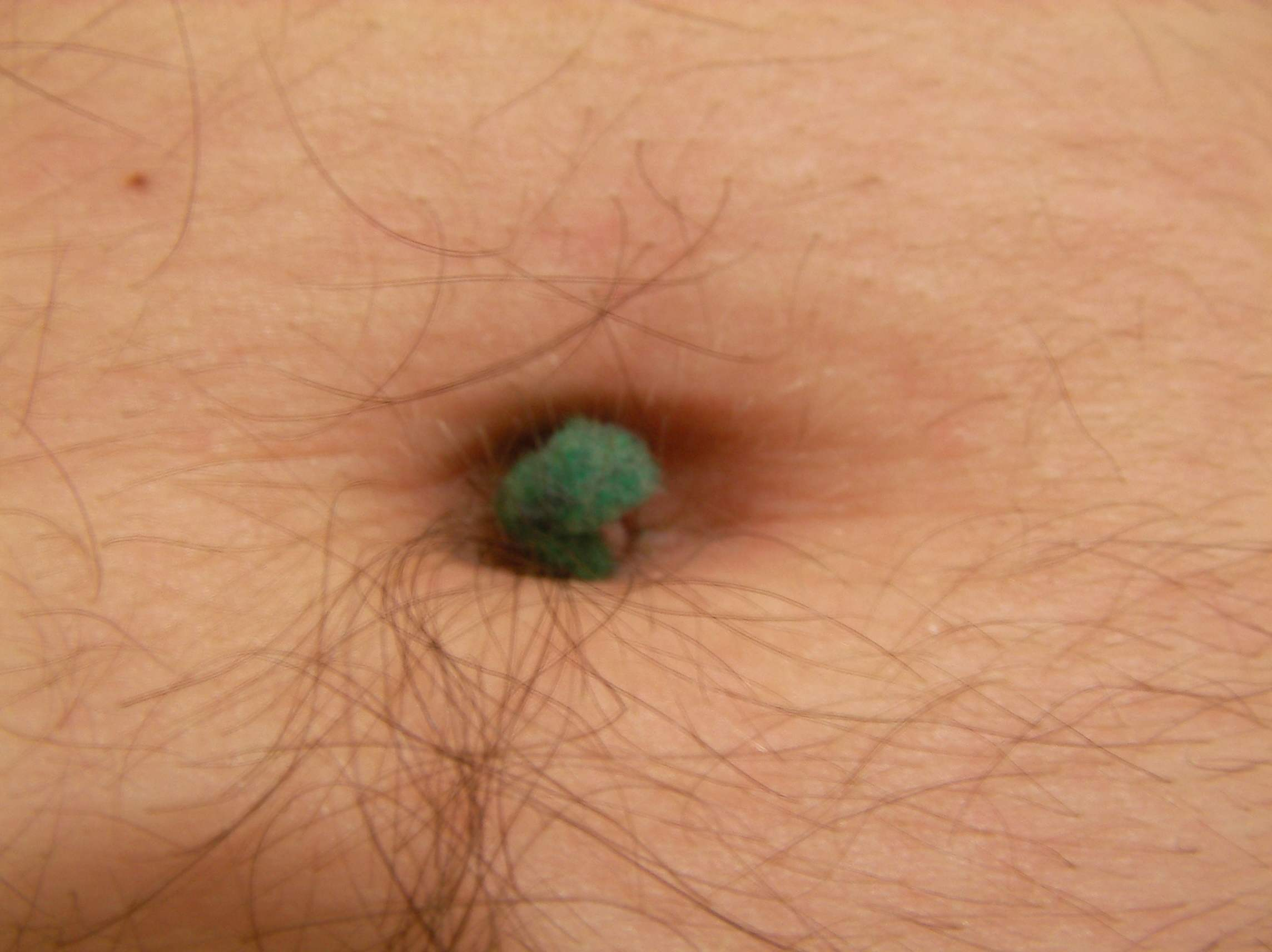 The Secrets Of Belly Button Fluff Discovered: Bluff Science