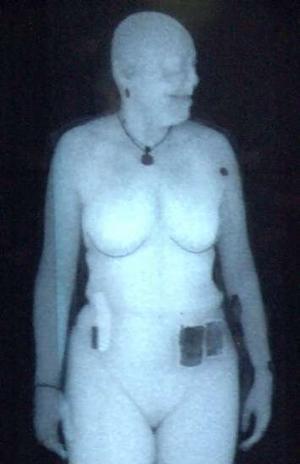 x-ray-body