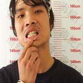 xiong-teeth