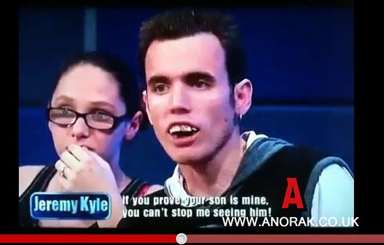 kyle-teeth-1